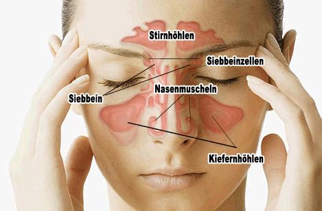 Nasennebenhöhlen Op